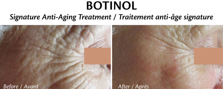 Top Non-Invasive Anti-Aging Treatments